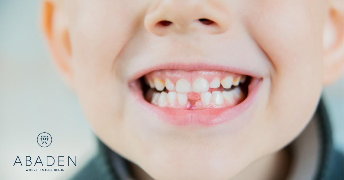 ortodoncia funcional, niños
